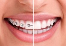 exeter-orthodontics-makes-braces-and-invisalign-more-affordable-for-wilmington